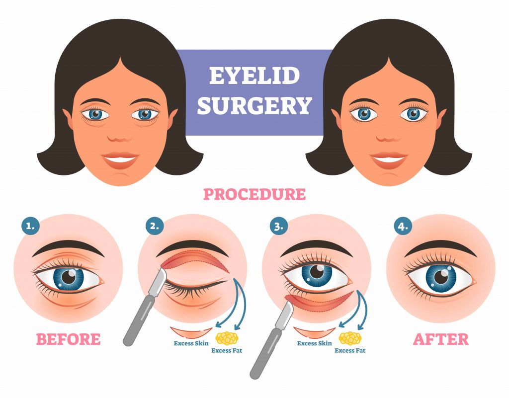 STEPS FOR EYELID SURGERY