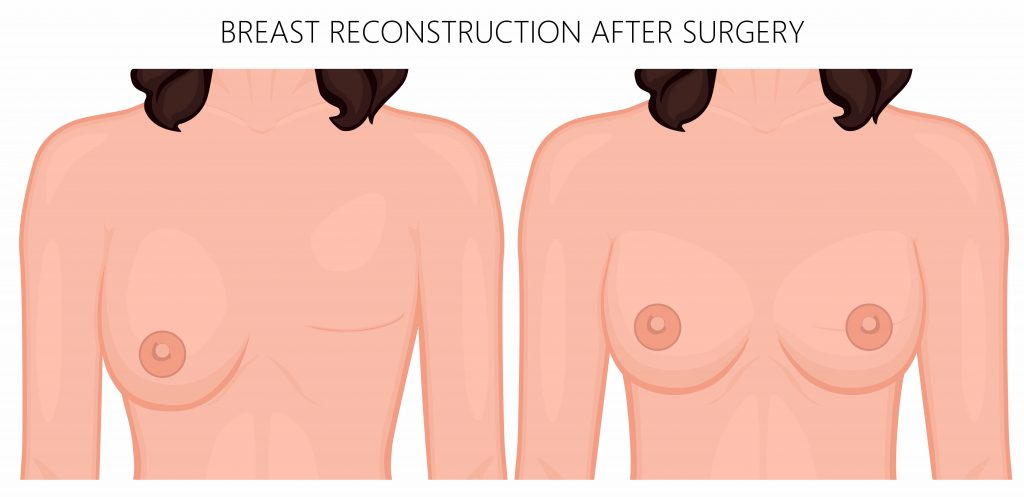 Breast-Reconstruction-1