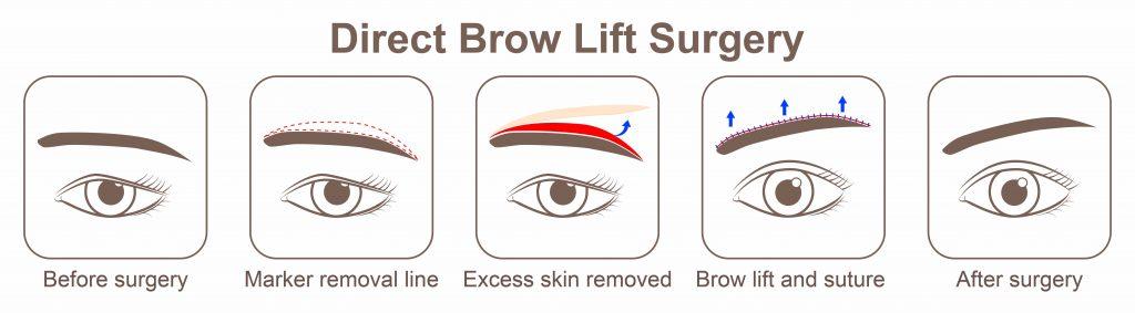 Brow-Lift-Browplasty-2
