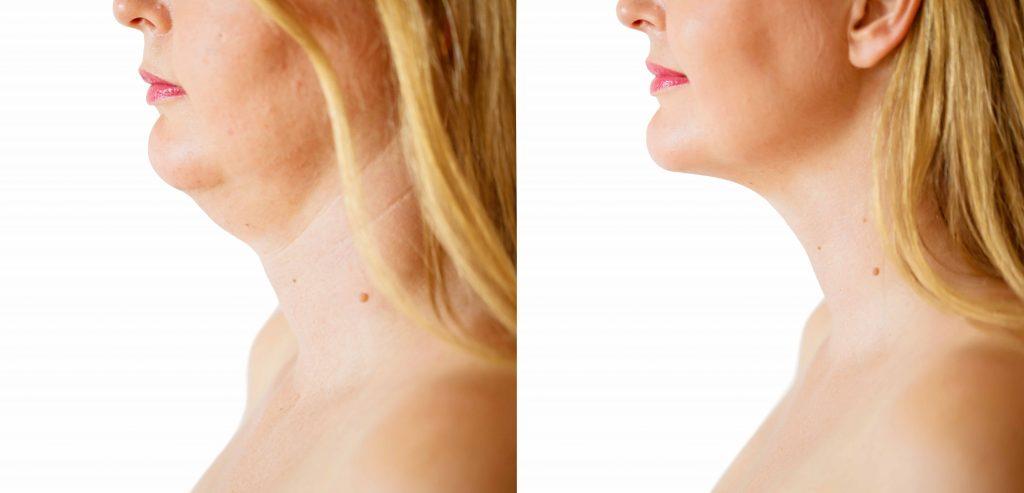 chin augmentation-surgery