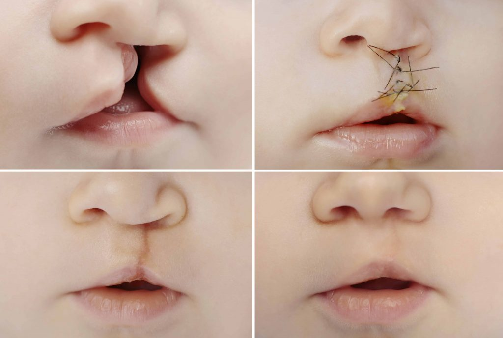 Cleft-Lip-and-Palate-Repair
