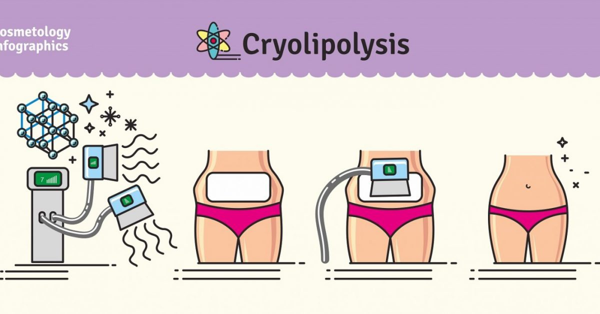 Cryolipolysis-Nonsurgical-Fat-Reduction