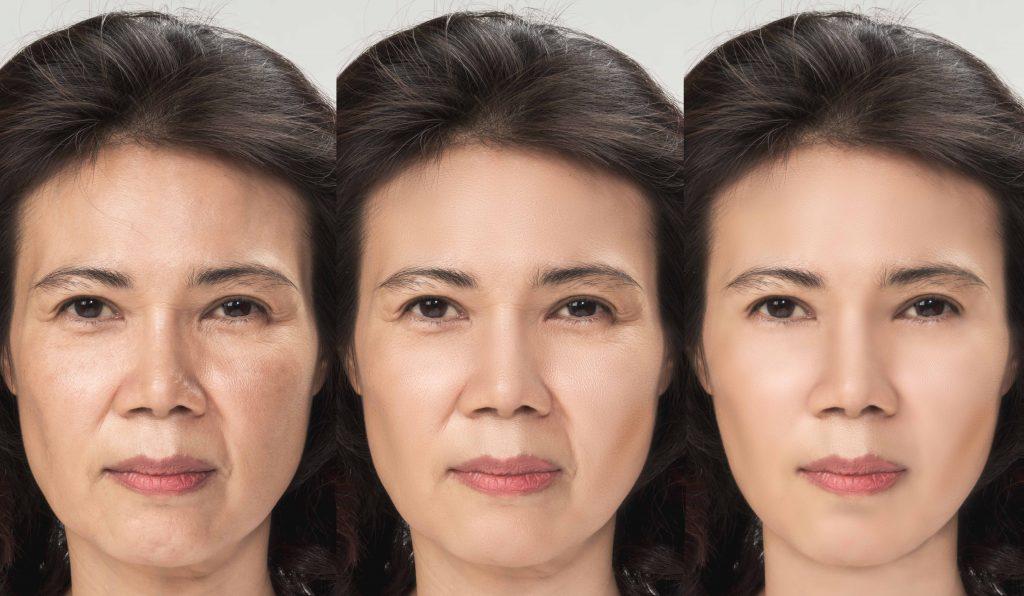 Facelift-Surgery-2