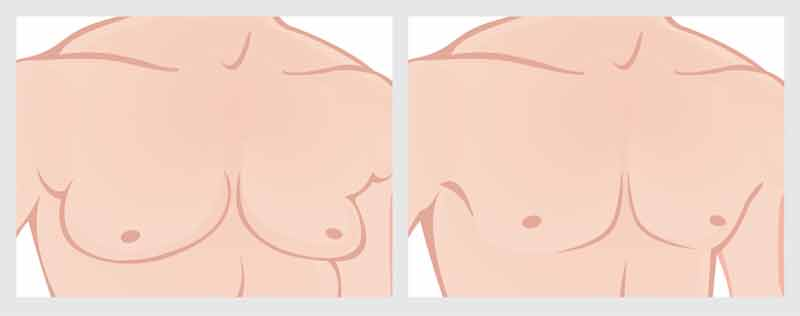 Gynecomastia-Before and After Photo