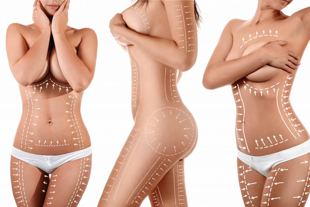 what is liposuction