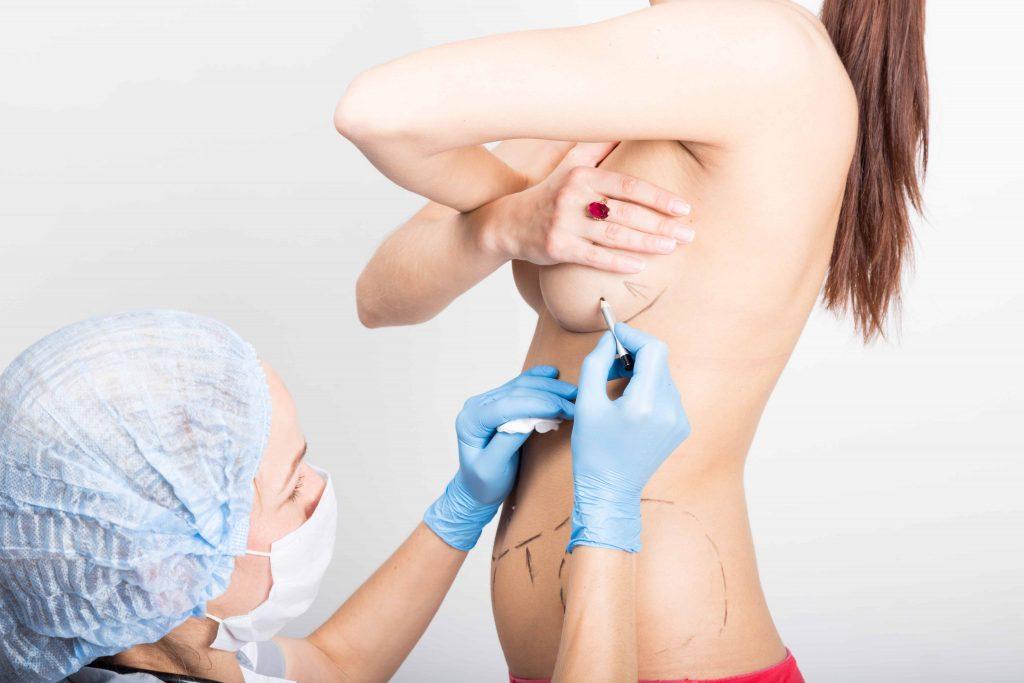Breast Lift Preparation