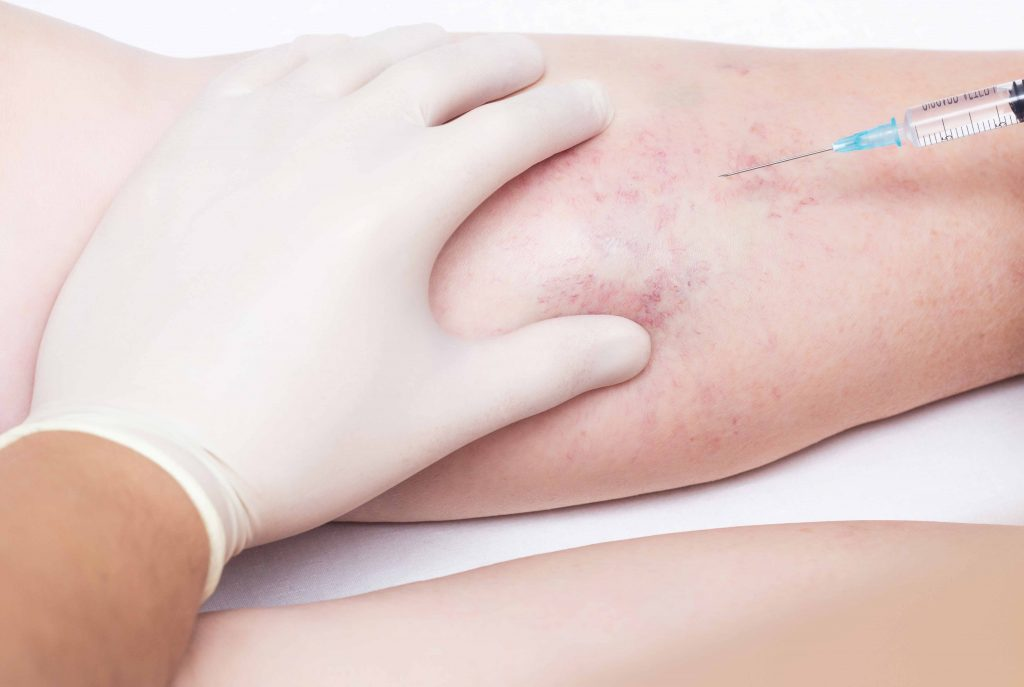Spider Vein Treatment Procedure