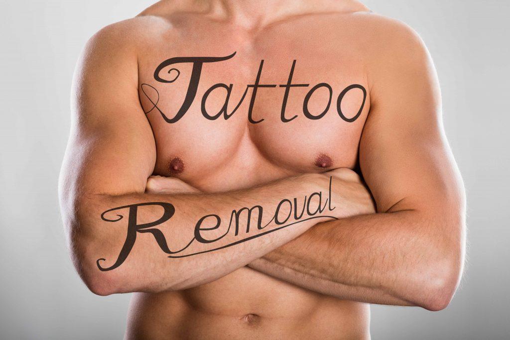 Tattoo Removal Procedure