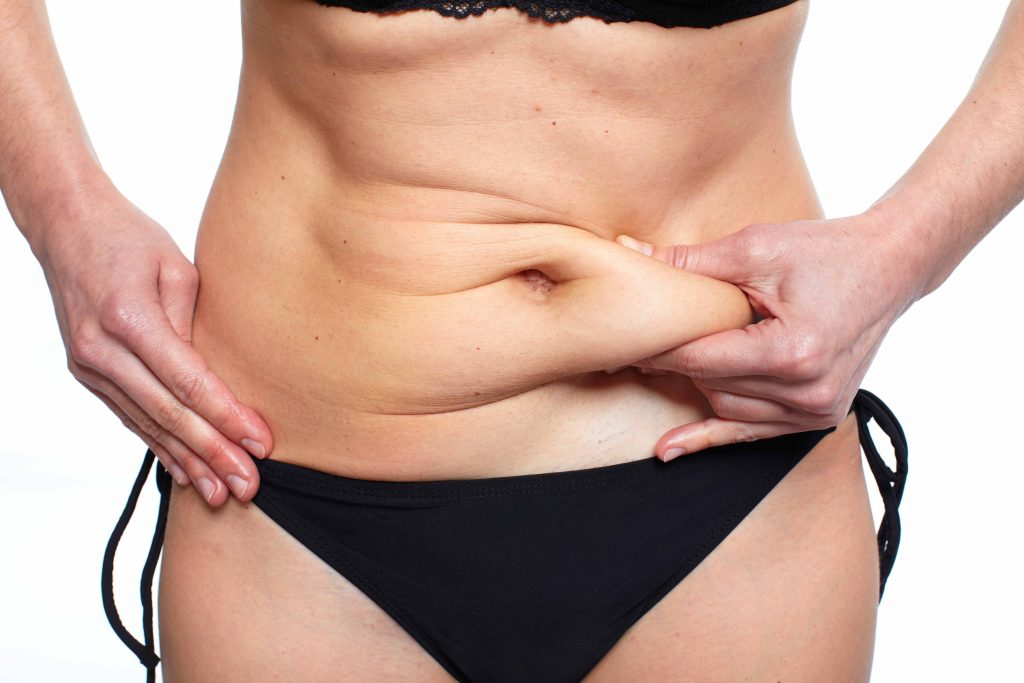 Tummy Tuck suitability