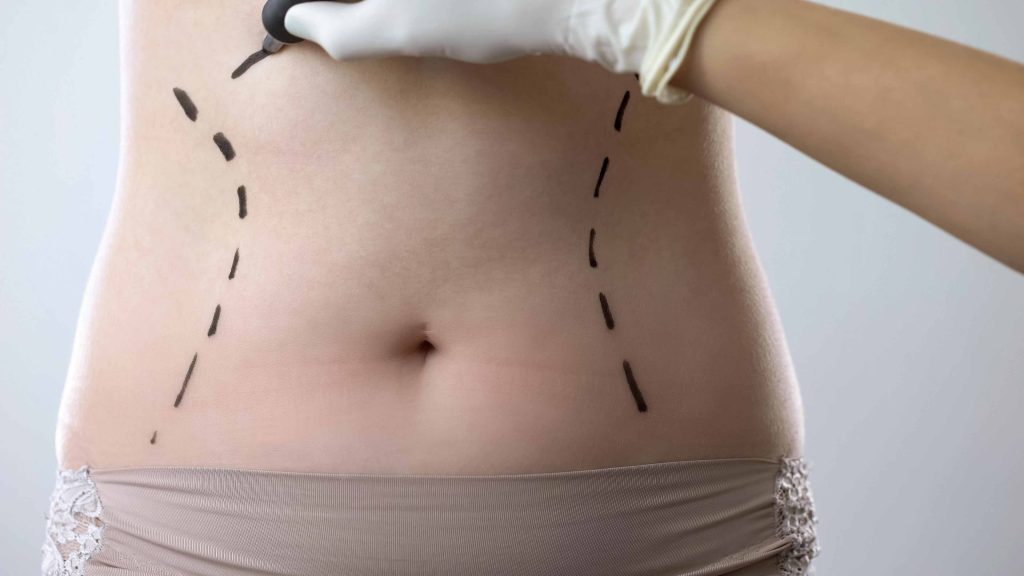 Tummy Tuck Preparation