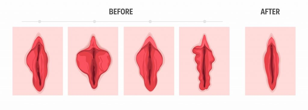 Vaginal Rejuvenation - Before & After