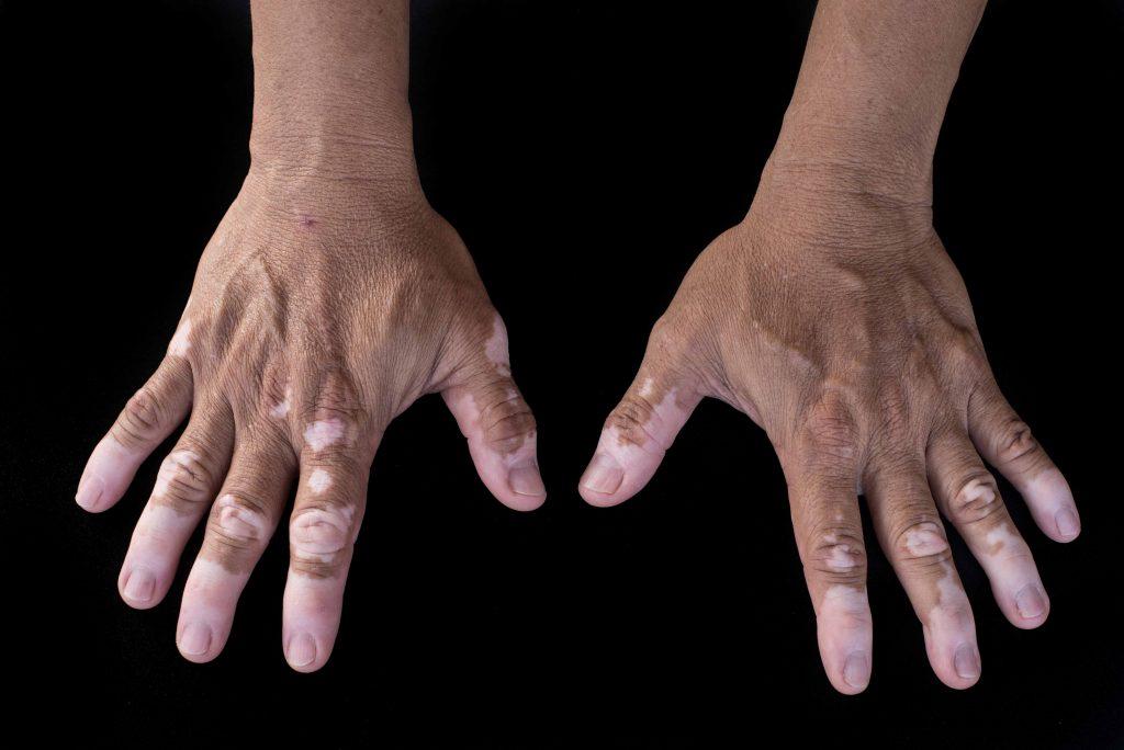 Vitiligo-3