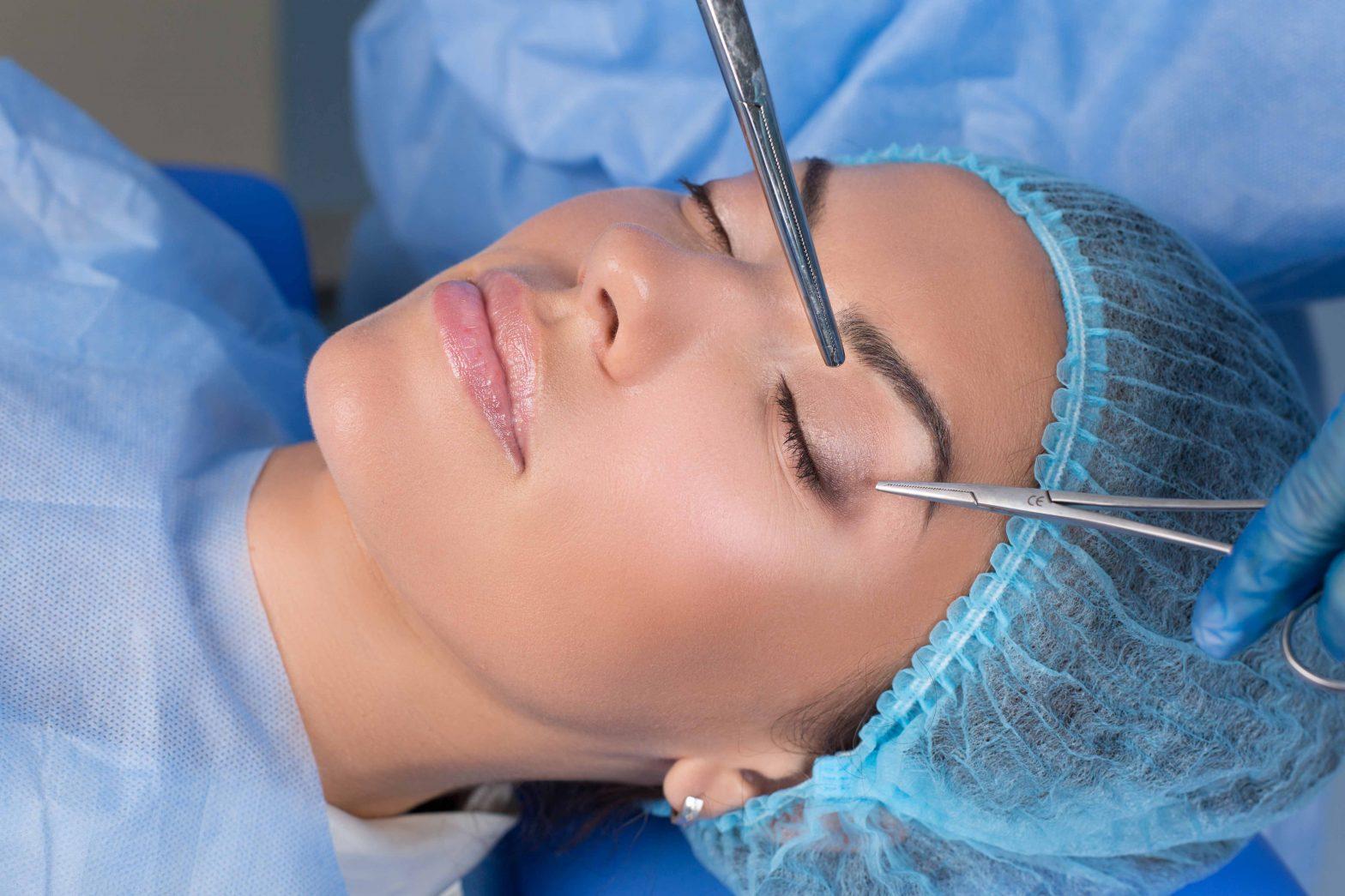 eyelid-surgery-1
