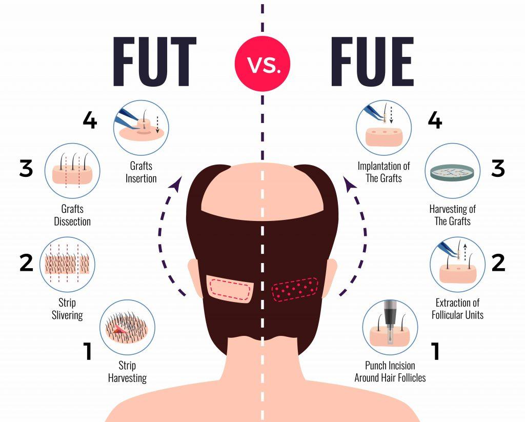 hair transplant fut vs fue