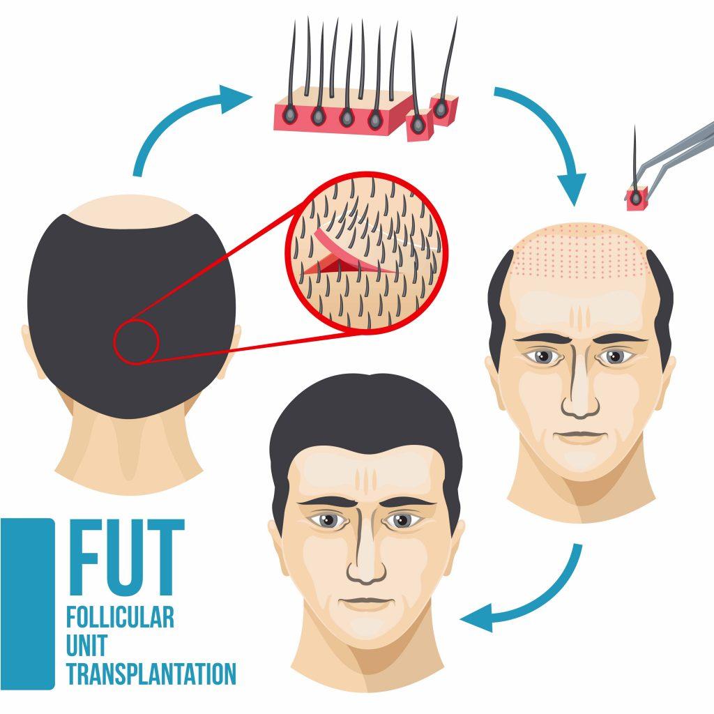 hair transplant fut procedure