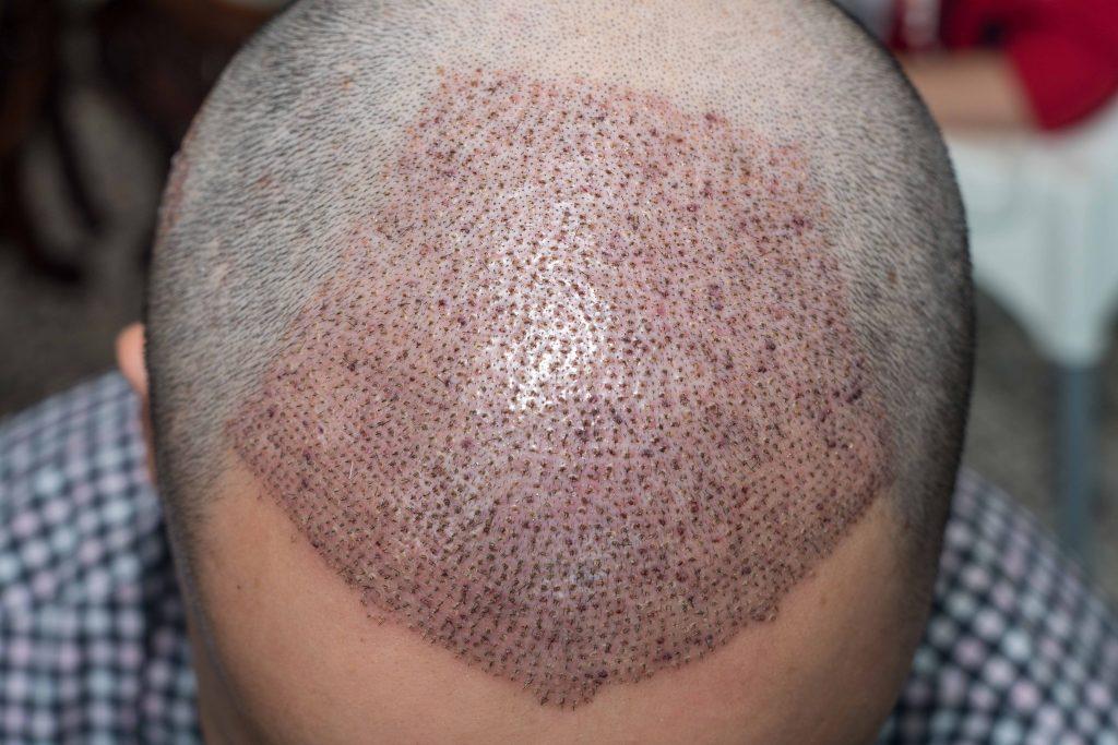 hair transplant post-treatment