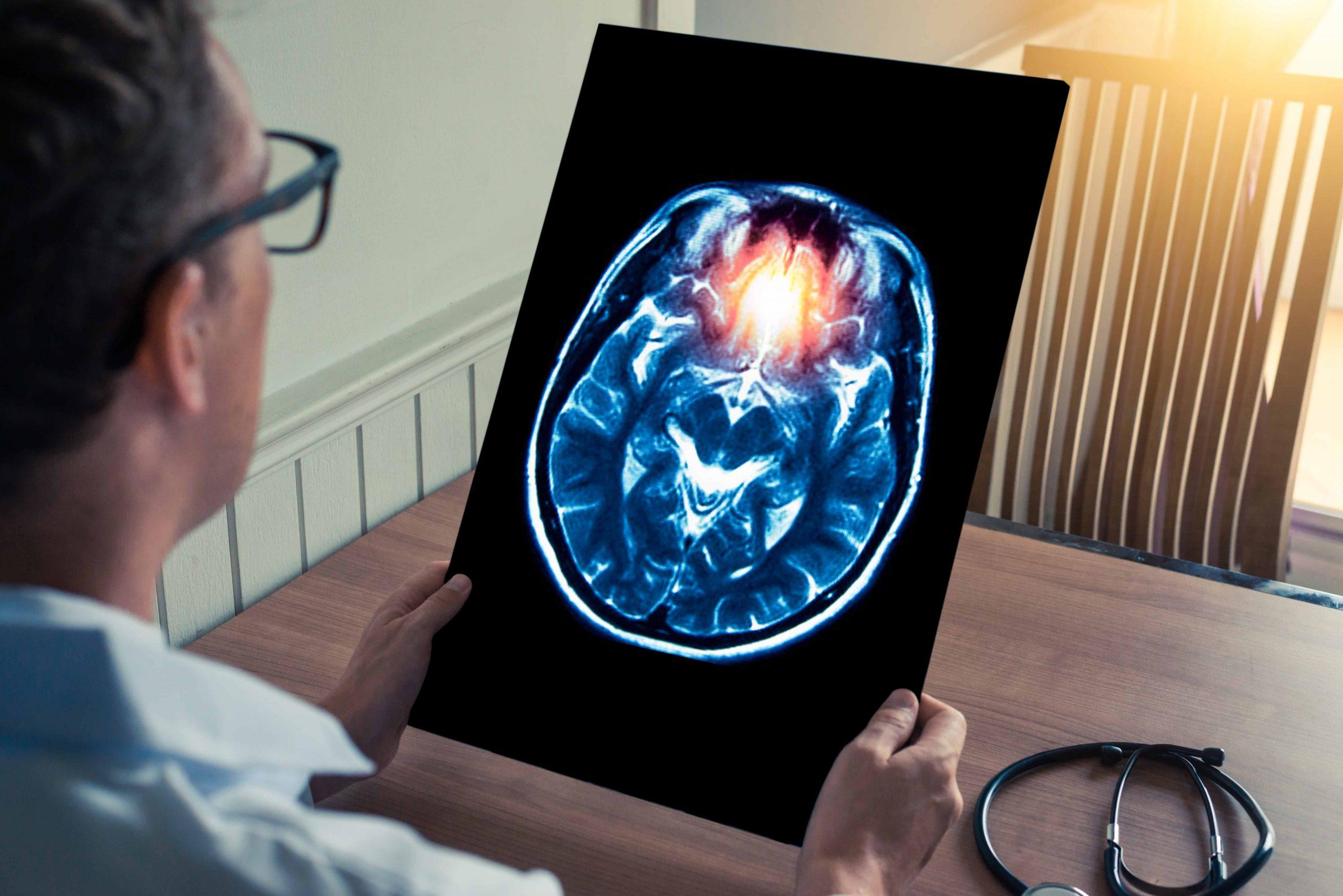 Migraine-Surgery-1