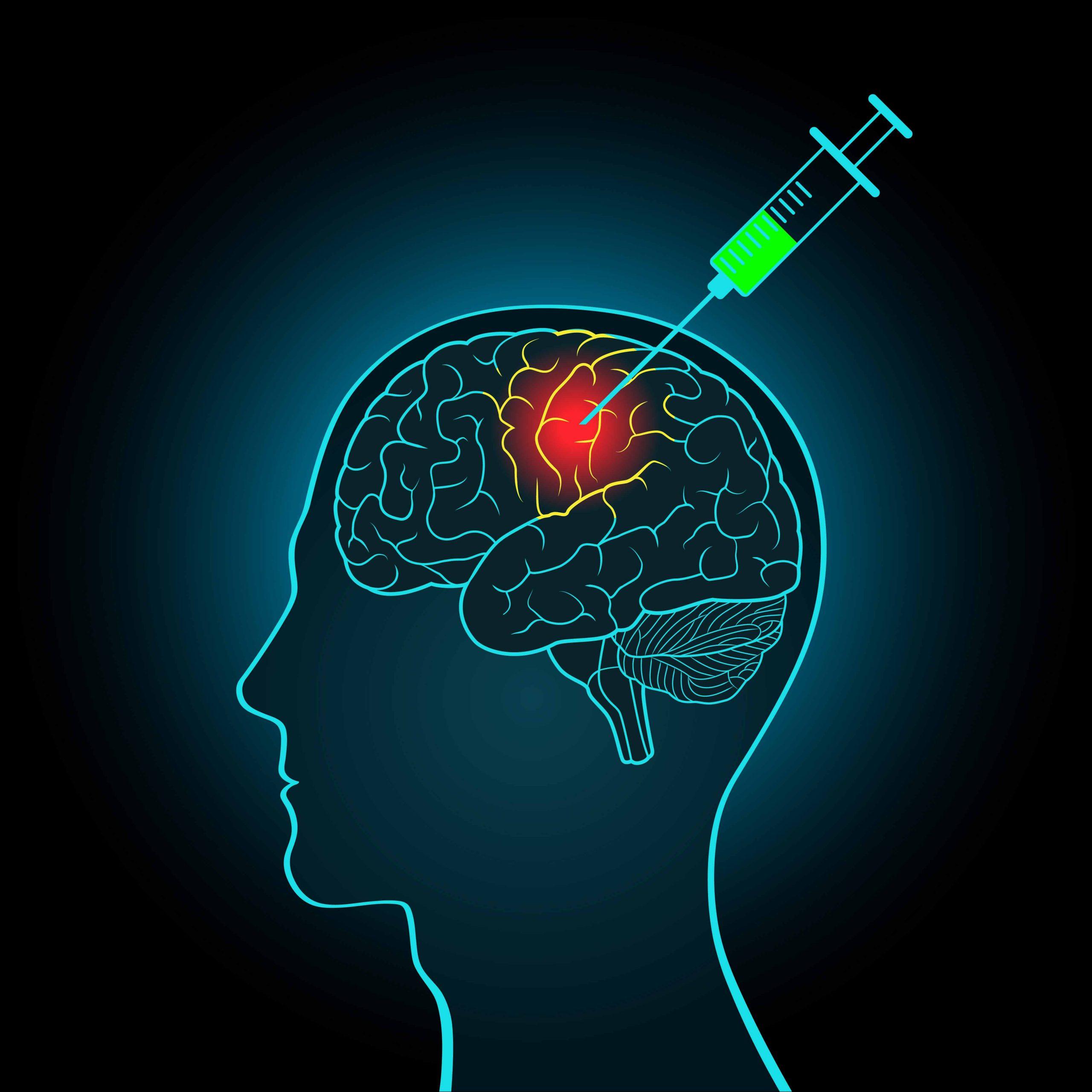 Migraine-Surgery-2