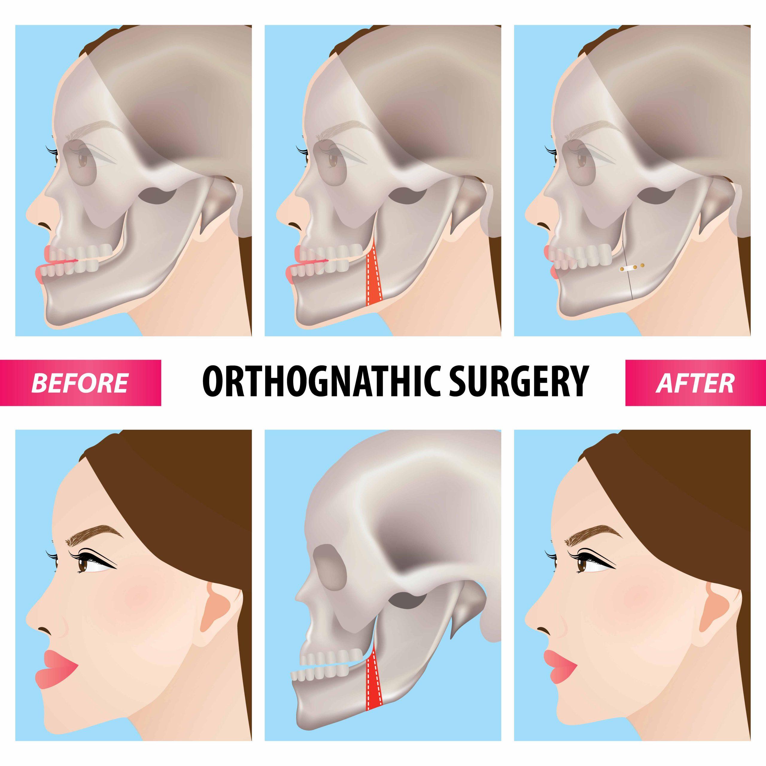 Orthognathic-Surgery-Jaw-Straightening-1