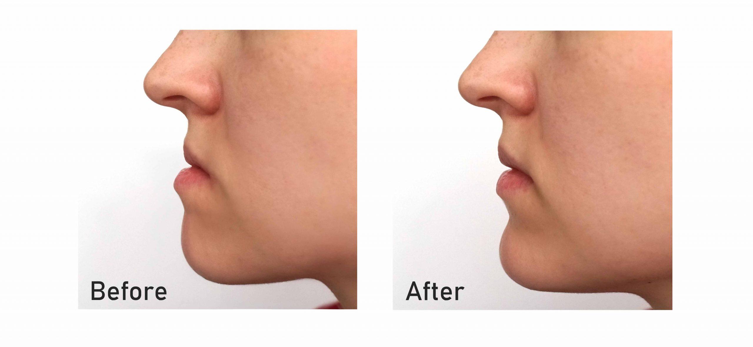 Orthognathic-Surgery-Jaw-Straightening-2