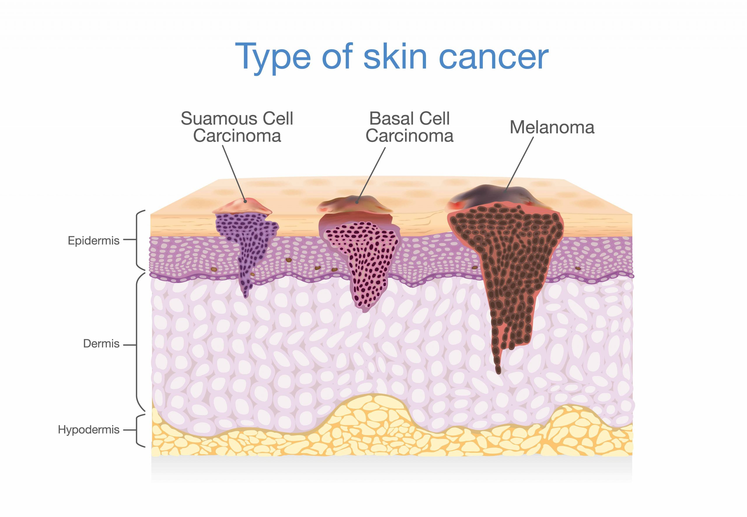 Skin-Cancer-Removal-2
