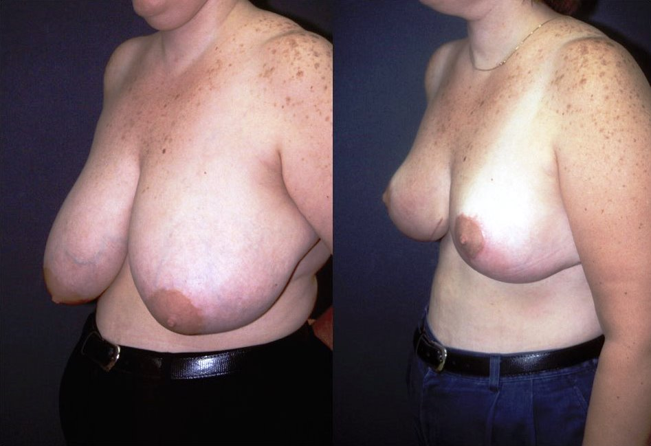 Breast Reduction Before & After Photo - Dr. Bhangoo