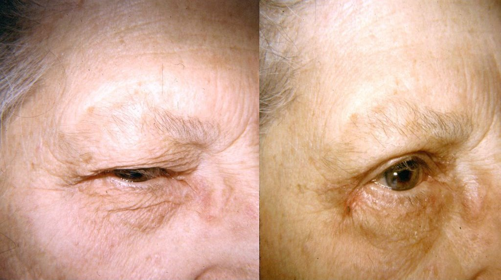 Eyelid Surgery Before & After Photo - Dr. Bhangoo