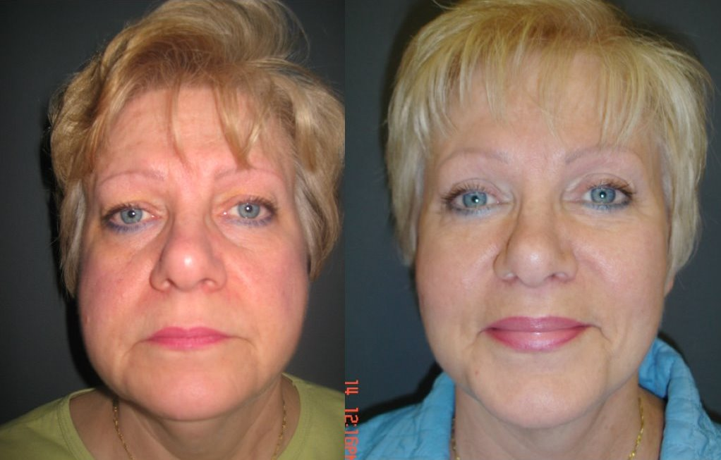 Facelift Before & After Photo - Dr. Bhangoo