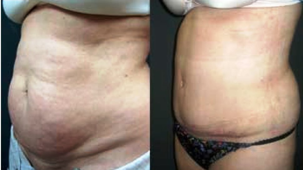 Tummy Tuck Before & After Photo - Dr. Bhangoo