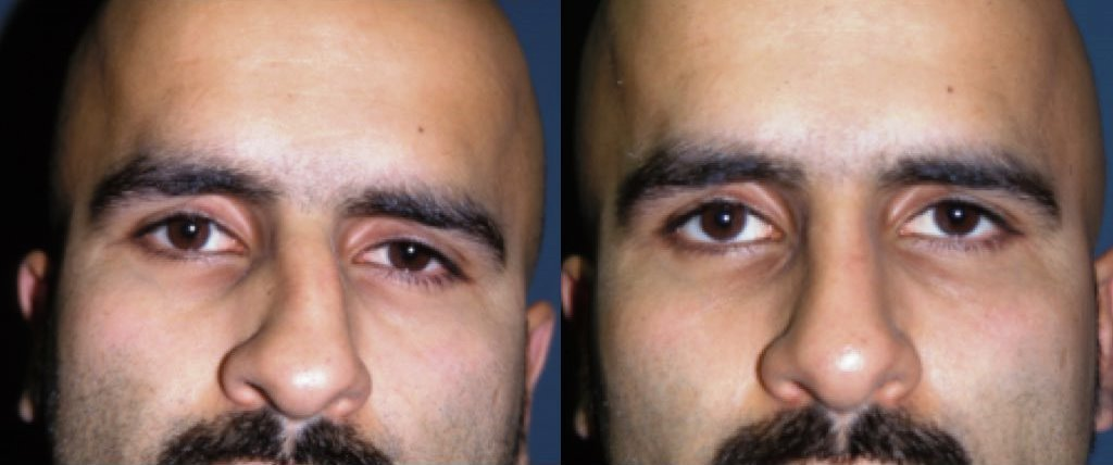 Rhinoplasty Before & After Photo - Dr. Bhangoo