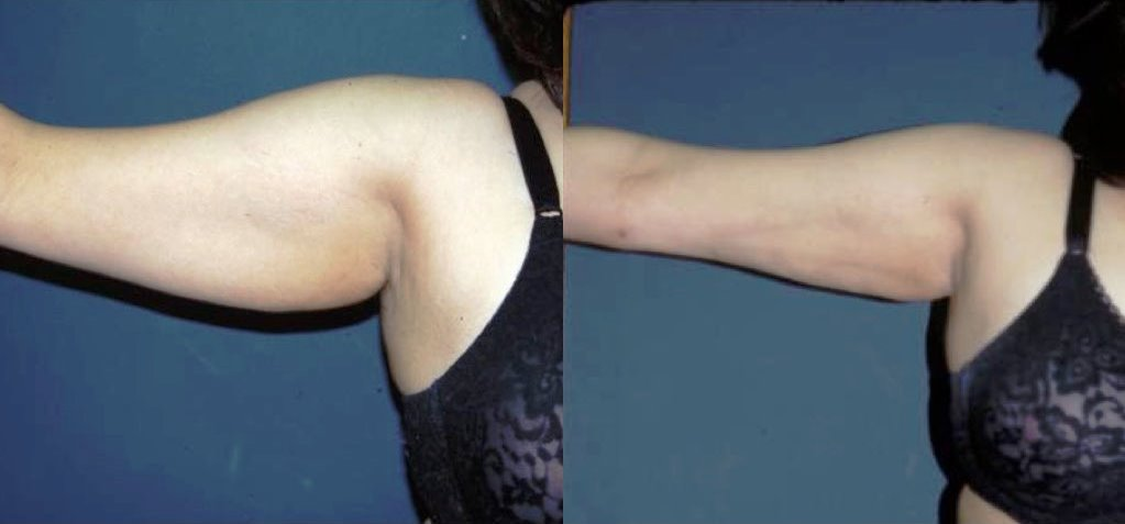 Arm Lift Before & After Photo - Dr. Bhangoo