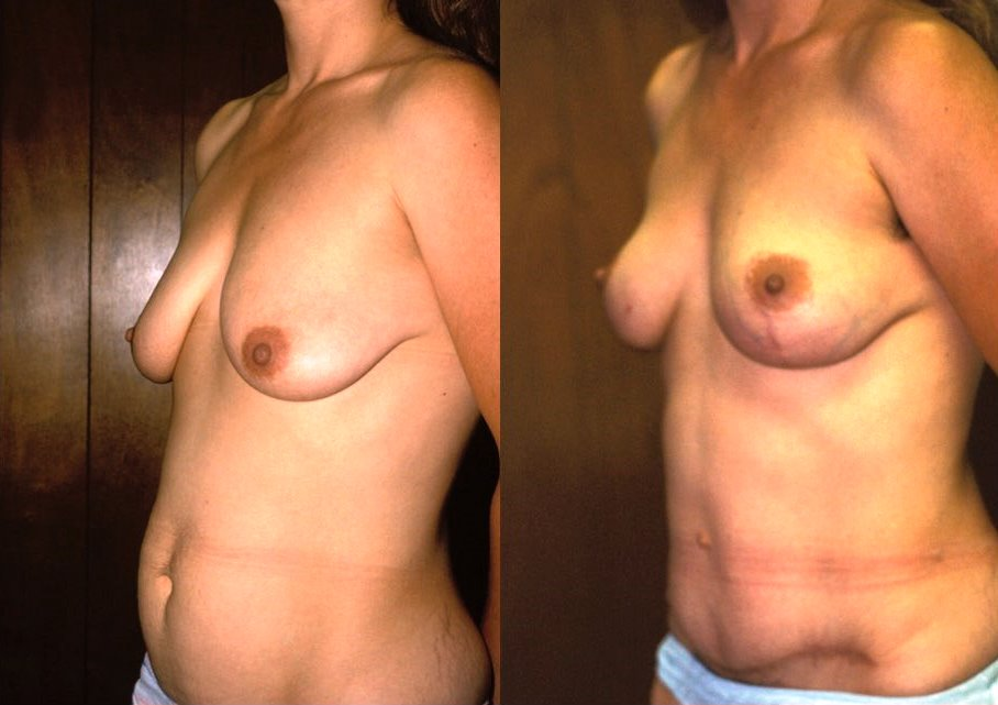 Breast Lift Before & After Photo - Dr. Bhangoo
