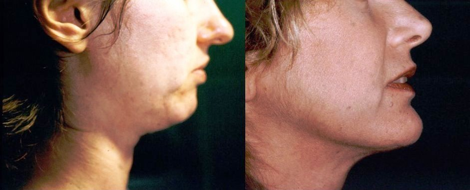 Chin Augmentation Before & After Photo - Dr. Bhangoo