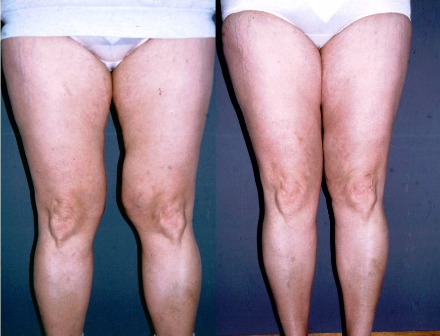 Liposuction Before & After Photo - Dr. Bhangoo