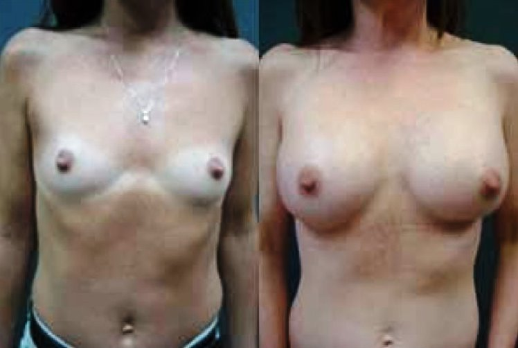 Breast Augmentation Before & After Photo - Dr. Bhangoo