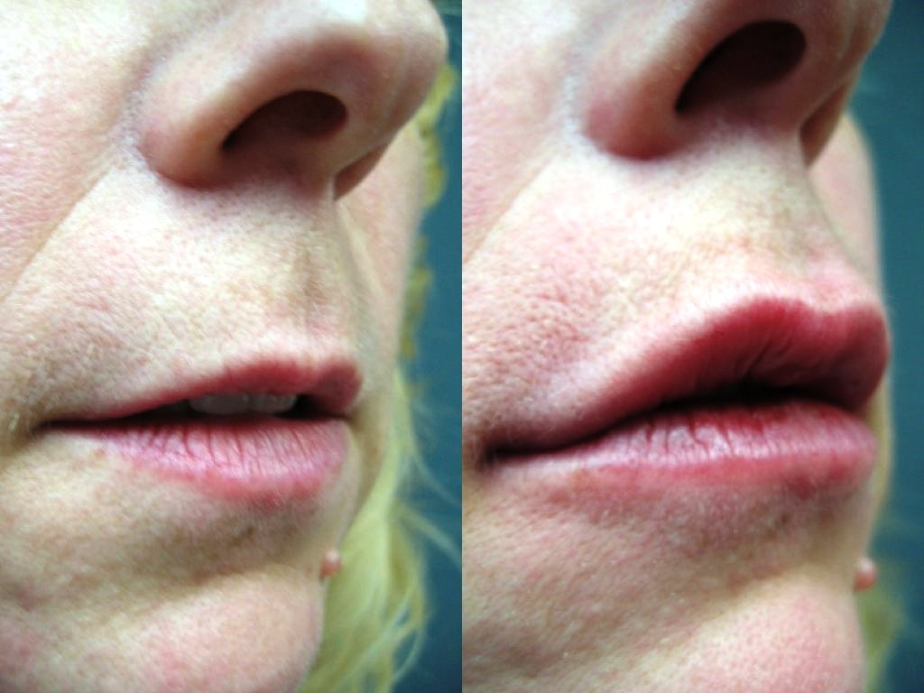 Lip Augmentation Before & After Photo - Dr. Bhangoo