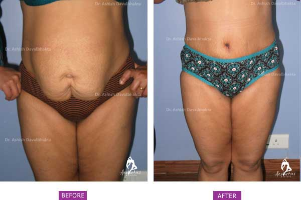 Tummy Tuck Before & After Photo - Dr. Ashish Davalbhakta