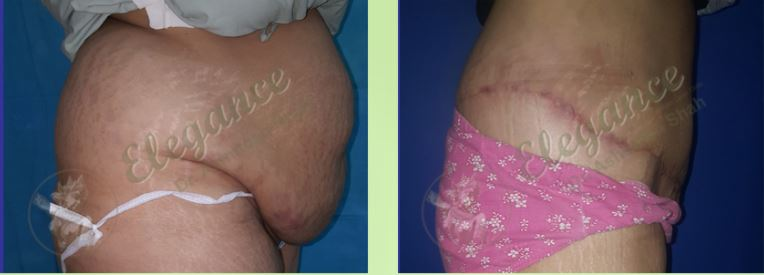 Tummy Tuck Before & After Photo - Dr. Ashutosh Shah