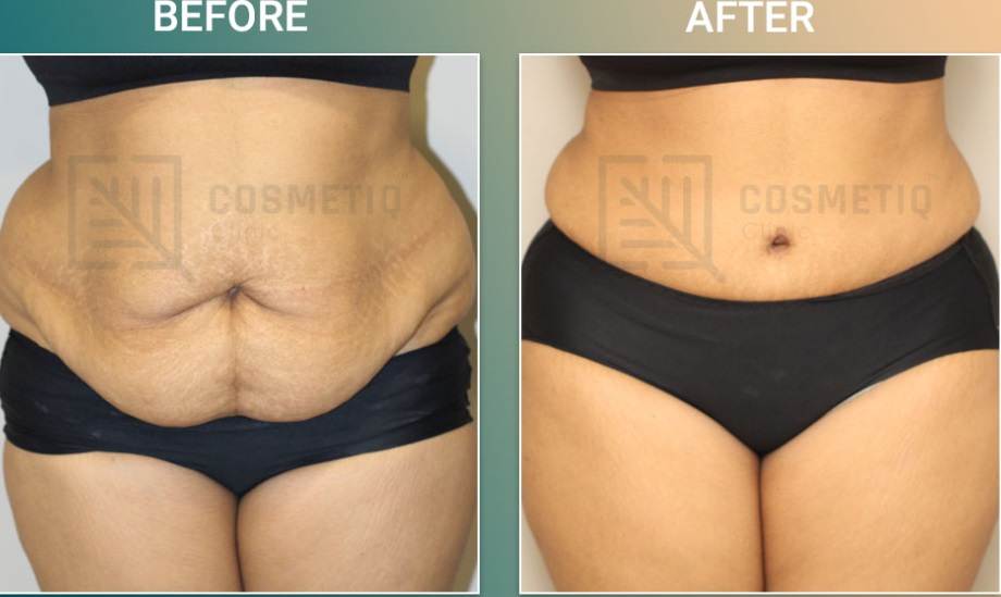 Tummy Tuck Before & After Photo - Dr. Bibilash Babu