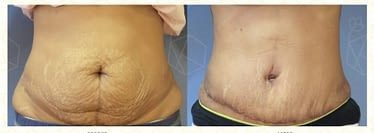Tummy Tuck Before & After Photo - Dr. Karishma Kagodu
