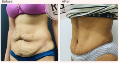 Tummy Tuck Before & After Photo - Dr. Rajat Gupta