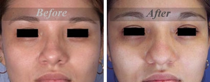 Eyelid Surgery Before & After Photo - Dr. Akshay Rout