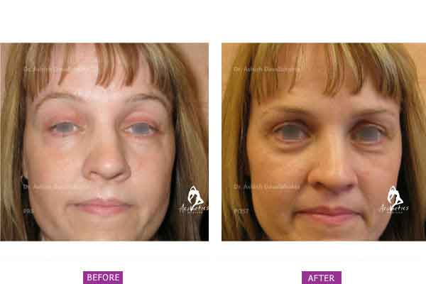 Eyelid Surgery Before & After Photo - Dr. Ashish Davalbhakta