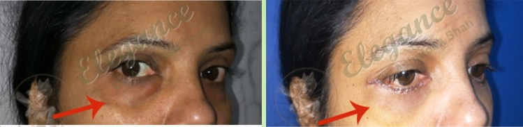 Eyelid Surgery Before & After Photo - Dr. Ashutosh Shah