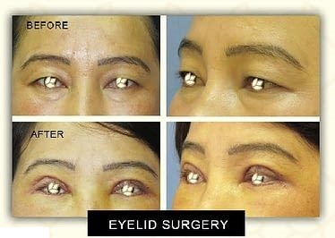 Eyelid Surgery Before & After Photo - Dr. Karishma Kagodu