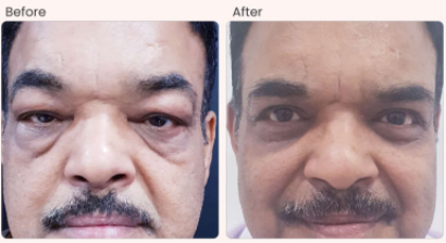 Eyelid Surgery Before & After Photo - Dr. Rajat Gupta
