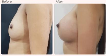 Breast Augmentation Before & After Photo - Dr. Karishma Kagodu
