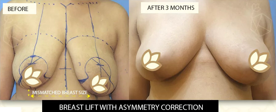 Breast Lift with Asymmetry Correction