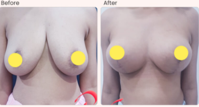 Breast Lift Before & After Photo - Dr. Rajat Gupta