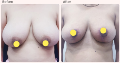 Breast Reduction Before & After Photo - Dr. Rajat Gupta